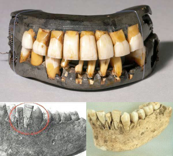 History of the dental implants